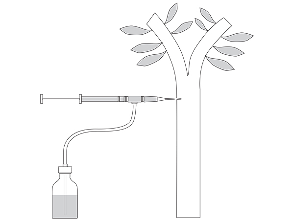 Endoterapia-Nuovo-Metodo-Corradi